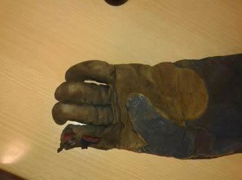 Injury to hand